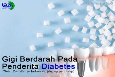 Gigi-Berdarah-Pada-Penderita-Diabetes1592811523.jpg
